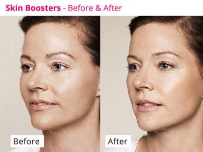 skinboosters-feature